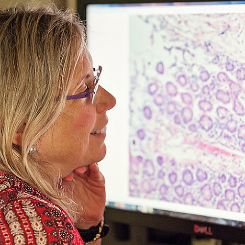 Aggressive Breast Cancers Store Large Amounts of Energy, Enabling Them to Spread